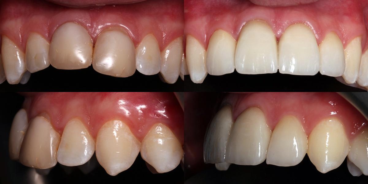 Hornchurch Dentist in Essex offer
